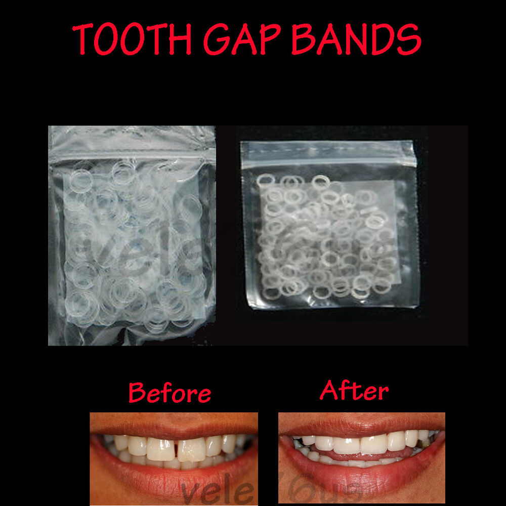 Clear Teeth Gap Bands 3 16 Quot Orthodontic Bands Heavy Free