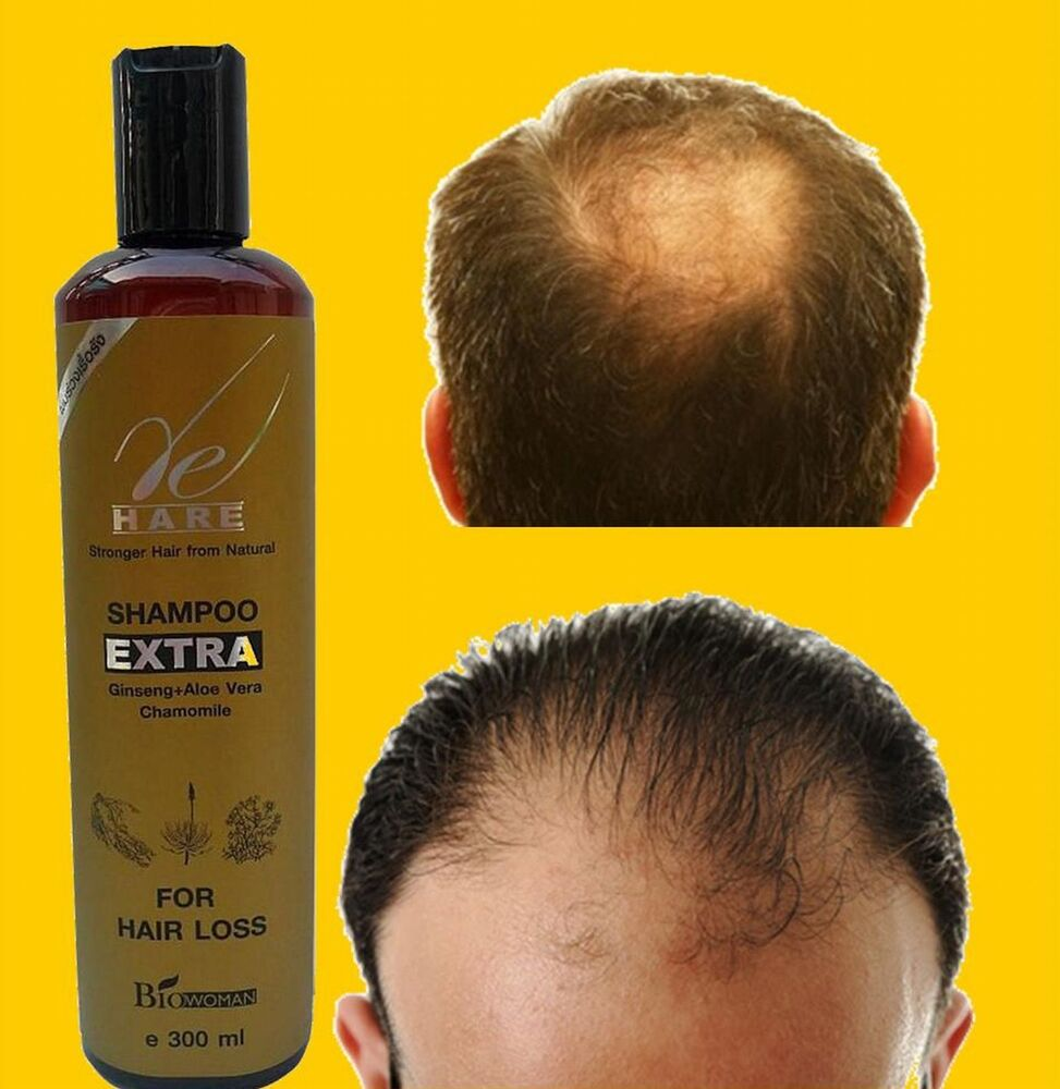 Natural Hair Growth Treatment In India