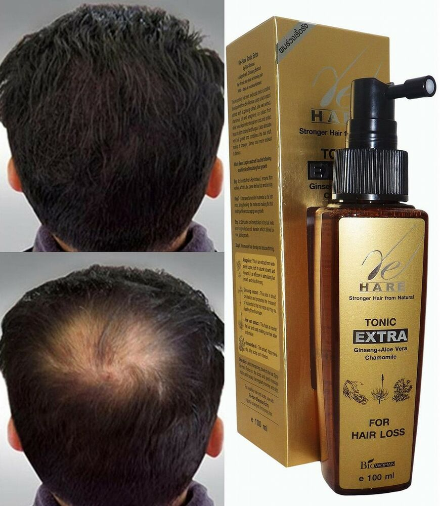 Hair Loss Tonic Fast Grow Regrowth Treatment In 60 Days Ebay