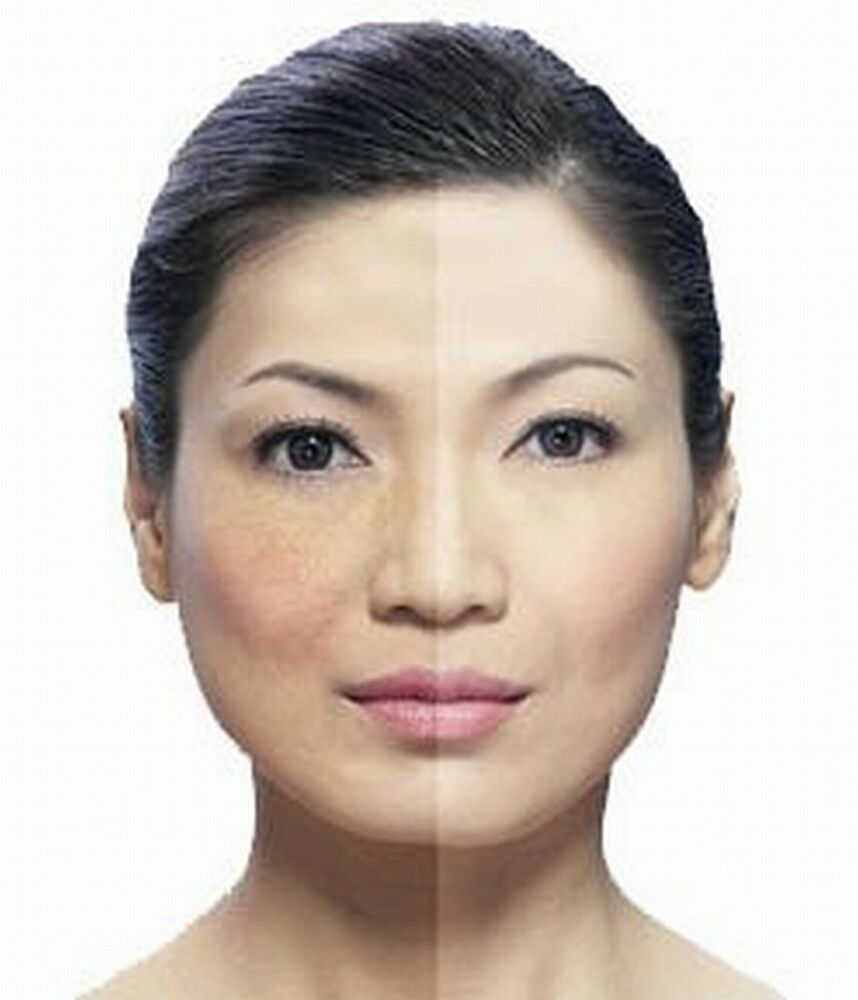 melasma and photo facial