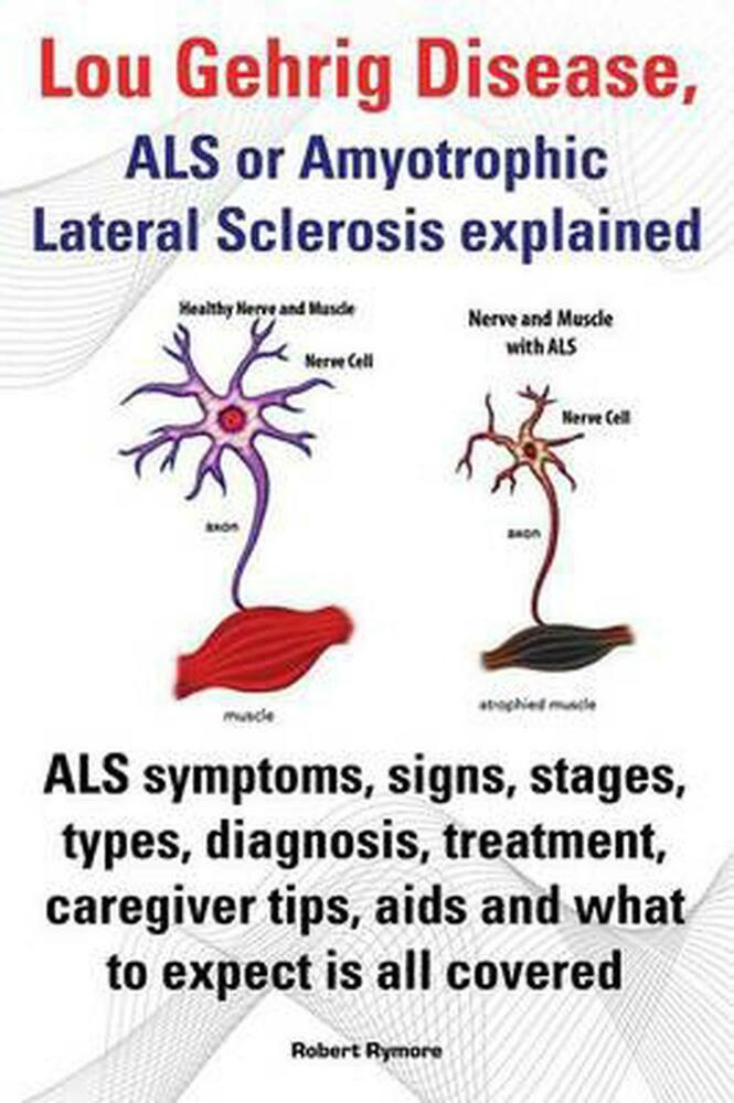 Lou gehrig disease als or amyotrophic lateral sclerosis for Motor neuron disease symptoms early
