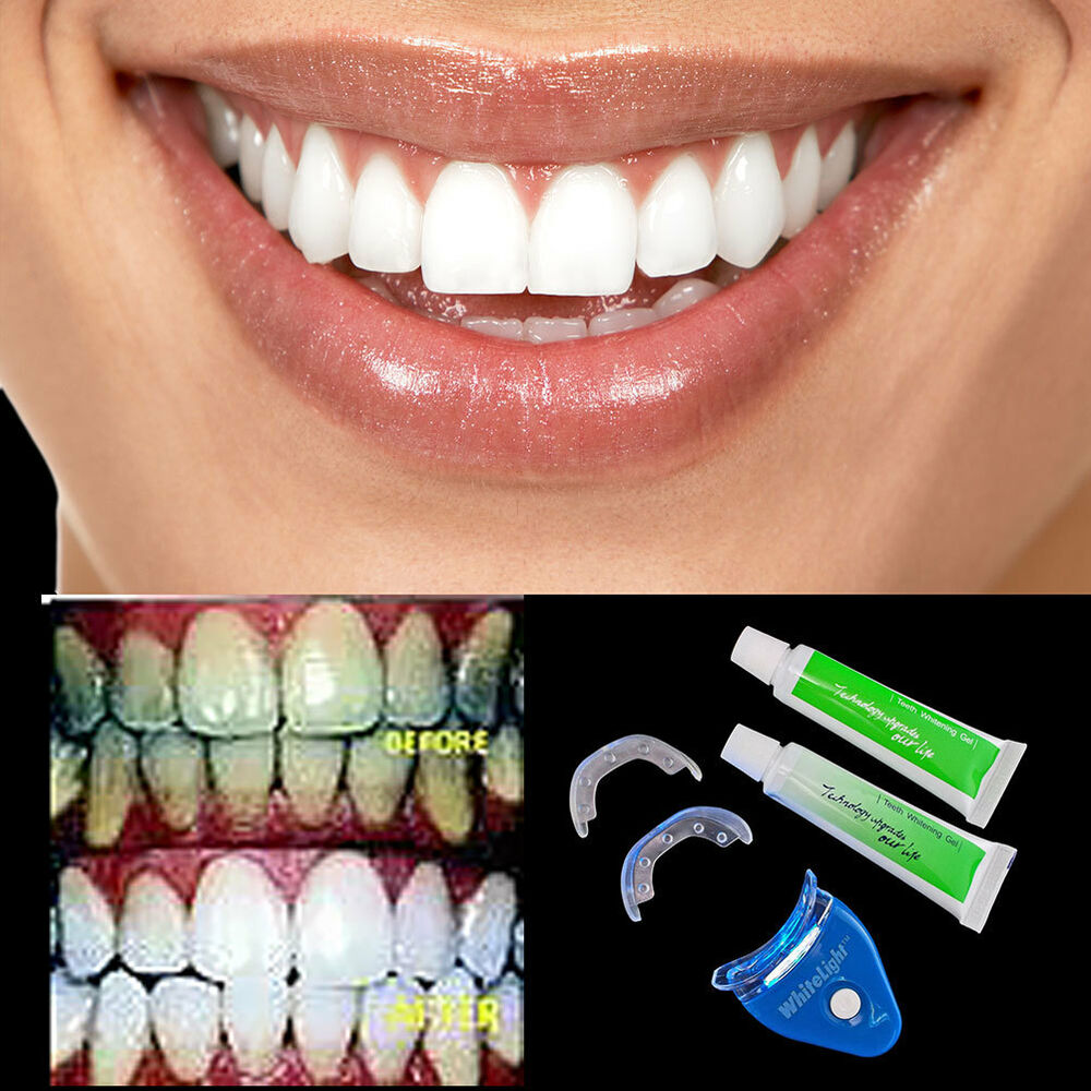 Fast Dental Tooth Teeth Whitening Whitener Gel Device