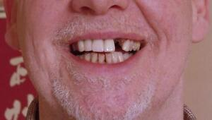 MISSING-TEETH-TRY-TEMPTOOTH-TEMPORARY-TOOTH-REPLACEMENT-DO-IT-YOURSELF