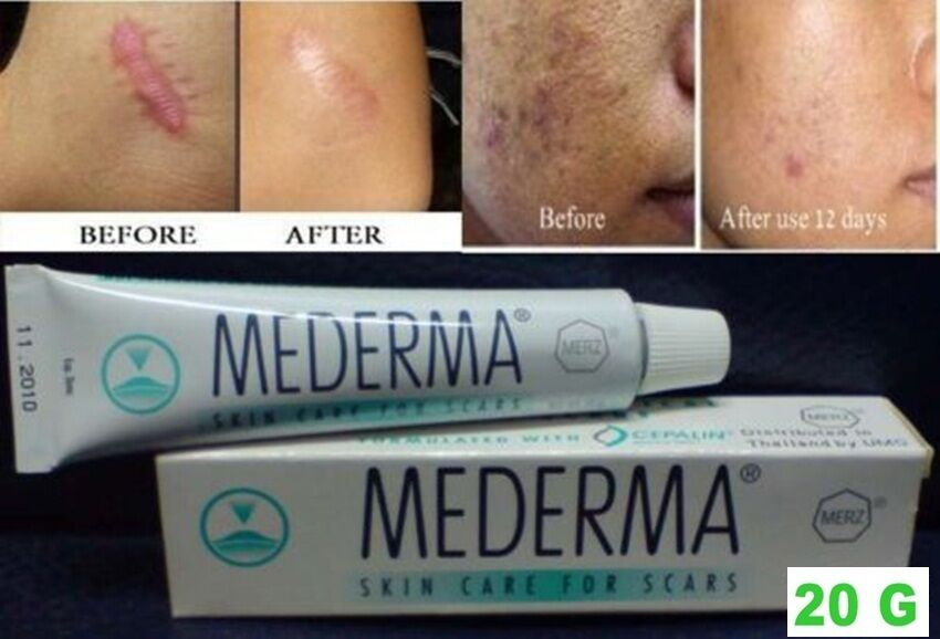 Mederma Deals On 1001 Blocks