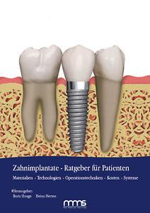 Ratgeber-Implantate-Fachbuch-Implantatratgeber-Patient