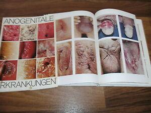 Werner-Mueller-ANOGENITALE-ERKRANKUNGEN-Makroskopische-Diagnostik-1-AL-1975