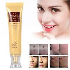 Acne Scar Remover Acne Treatment Shrink Pores Gel Bleaching Whitening Face Cream