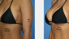 Breast Enhancement Cream Helps in Tightening Sagging and Loose Skin Get 8 ounce