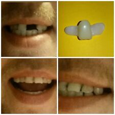 Fake Tooth*New Temporary Replacement Front Tooth*Central Incisor*Instantly smile