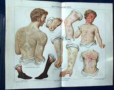 Originaldrucke (1800-1899) aus Europa mit Lithographie
