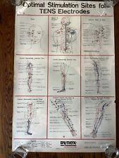 Vintage 1980 Dynex Neurostimulator Stimulation Electrodes Medical Chart Poster