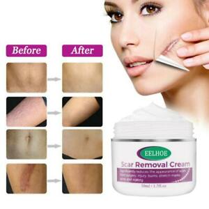 Organic Skin Rebound / Scar Removal Cream