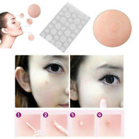 36PCS Skin Tag & Acne Patch - 2019 NEW Hydrocolloid Acne and Skin Tag Remover