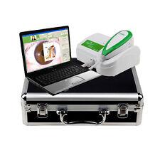 NUOVO 5.0MP USB Digital OCCHIO iriscope IRIDOLOGIA Telecamera + Iris Analizzatore Pro Software