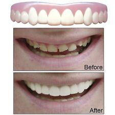 Imako Cosmetic Upper Teeth Smile Overlay - Size Small