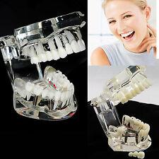 USA SALE Dental Removable Teeth Study Teaching Teeth Model Adult Typodont Model
