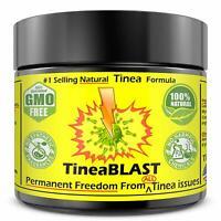Tinea Versicolor Antifungal Cream NATURAL Tinea Treatment Cream 100%FAST RELIEF