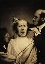 Framed Print - Victorian Era Medical Horrors Electric Facial Expressions (Art)