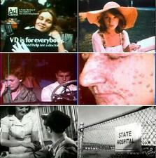 VD Venereal Disease Syphilis Prevention 1940s To 1960s  Films DVD