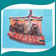 HumanPlacenta tissue enlargement model JY/42010-2 MedicalDemostration Teaching