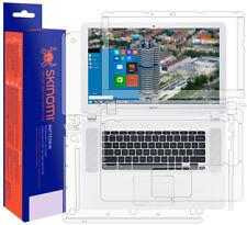 Skinomi MatteSkin Anti-Glare Full Body Protector for Acer Chromebook 15