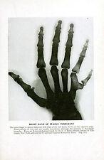 Incorniciato VINTAGE STAMPA MEDICA-radiografia di un 6 fingered hand (Picture ANATOMIA ART)