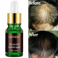 LIDORIA Powerful Hair Growth Essential Oil Treatment anti Hair Loss Hair Care ~~