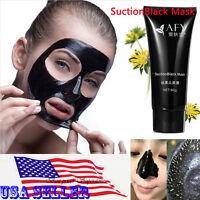 AFY Blackhead Remover Deep Cleansing Peel Off Acne Black Mask pore strip 60g