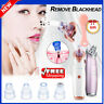 Electric Blackhead Remover Facial Skincare Pore Vacuum Acne Cleanser brush ka