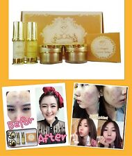 Freshy face GOLD SET acne & blemish treatments whitening and brightening  smooth