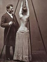 Antique Medical Scoliosis Treatment Photo 457 Oddleys Strange & Bizarre