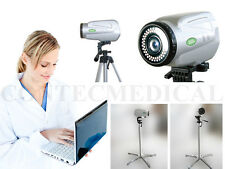 New Electronic Colposcope,High resolution colposcopy,Digital SONY imaging system