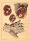 Medical Anatomy Antique Print-MUSCLES OF THE PALM-BOURGERY-Jacob-Benard-1831