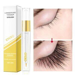Ultra Eyelash Growth Serum Eyebrow Enhancer Conditioner Advanced Formula New