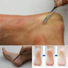 Exfoliating Foot Rasp File Callus Remover Foot Skin Care Hard Dead Skin Removal