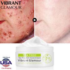 Tea Tree Essence Moist Facial Cream Acne Treatment oil-control Skin Cleaner Care