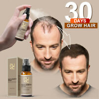 Miracle Hair Growth Spray Fast 30Days Grow Restoration Strengthen Hair Treatment