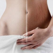 Women Cream Remove Scar Stretch Mark Postpartum Maternity Skin Body Repair Care