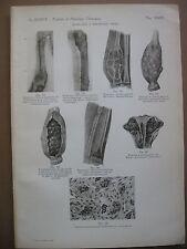stampa antica old print DISPLASIE E DISTROFIE OSSEE FEMORE RADIO OMERO  1938