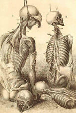 Framed Vintage Medical Print – Hanging Body's (Picture Poster Art Human Anatomy)