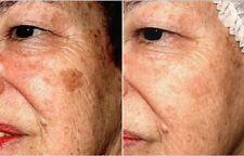 Prodotti antiacne e antimperfezioni con macchie per Donna