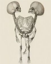 Skeleton Siamese Twins Art Print 8 x 10 - Goth Medical Oddity - Conjoined Horror