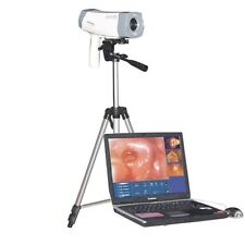 CE Approved Digital Electronic Colposcope SONY Camera 800,000 pixels RCS-400