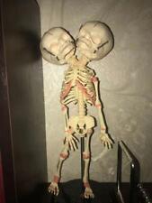 "14.5""  Human Double Head Baby Skull Skeleton Anatomical Anatomy  Alien variation"