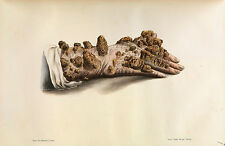 Framed Vintage Medical Print – Diseased Human Hand (Picture Surgery Anatomy Art)