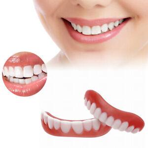 Snap On False Teeth Lower Upper Dental Veneers Dentures Fake Tooth Cover Set UK