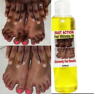 Double Action Feet Whitening Oil, Dark Spots Remover Oil, Whitening Oil