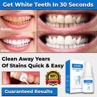 NEW INSTANT TOOTH WHITENING KIT WHITE TEETH CLEAN GEL UV BLEACH DENTAL STRENGTH