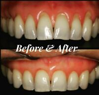 Extra Strength Super Potent Gum Disease Cure Stop Bleeding Receeding Gums Teeth