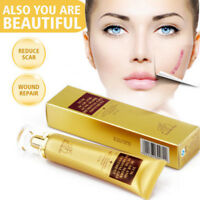 Whitening Scar Acne Removal Face Pore Skin Repair Spots Stretch Marks Cream 30g